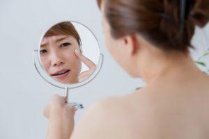 しみやシワなど年齢肌に悩む女性